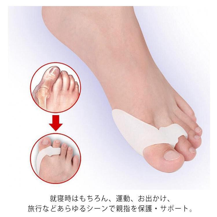 親指 足 痛い の 足の親指が痛いときのタイプ別の対処法